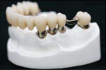 コーヌステレスコープ義歯